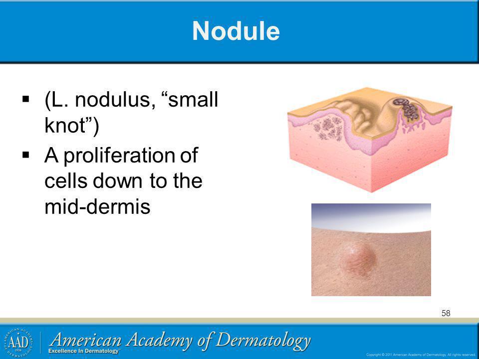 Nodule (L. nodulus, small knot )