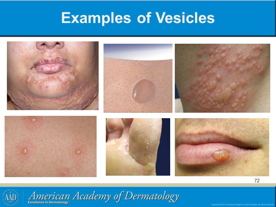 Examples of Vesicles