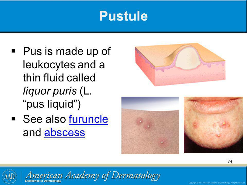 Pustule Pus is made up of leukocytes and a thin fluid called liquor puris (L.