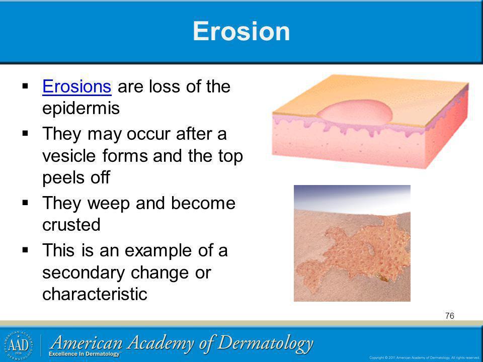 Erosion Erosions are loss of the epidermis