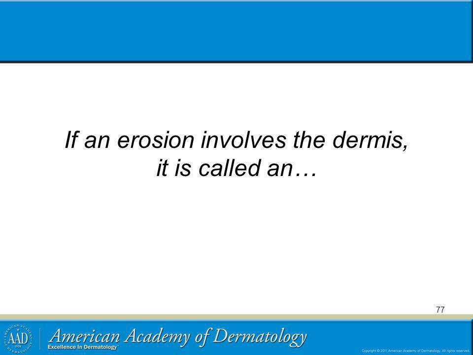 If an erosion involves the dermis, it is called an…