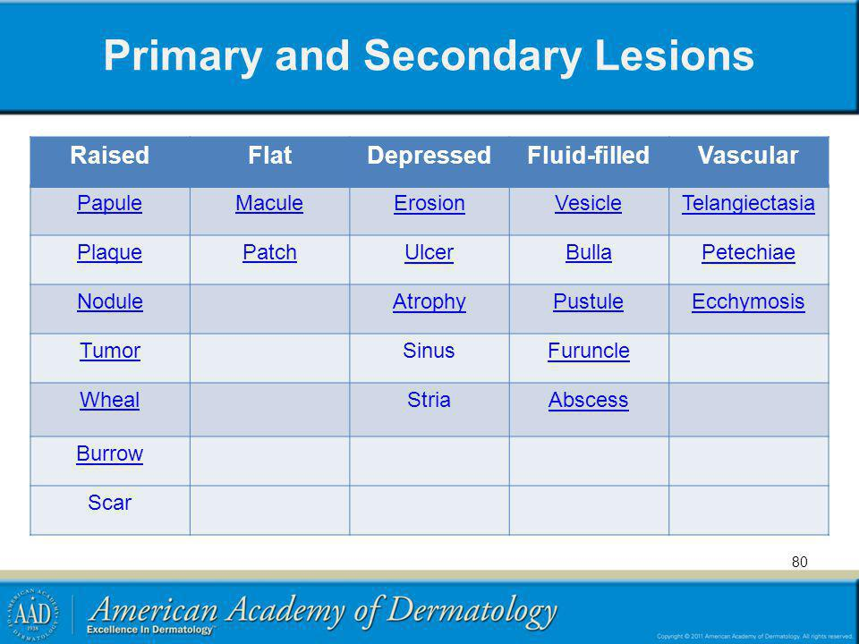 Primary and Secondary Lesions