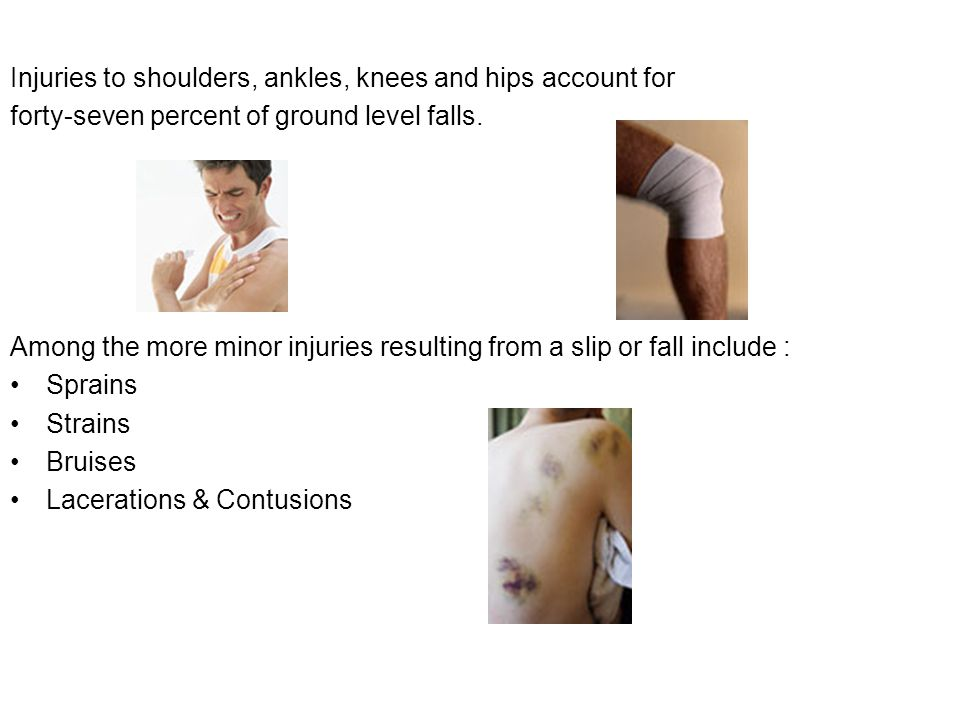 Injuries to shoulders, ankles, knees and hips account for