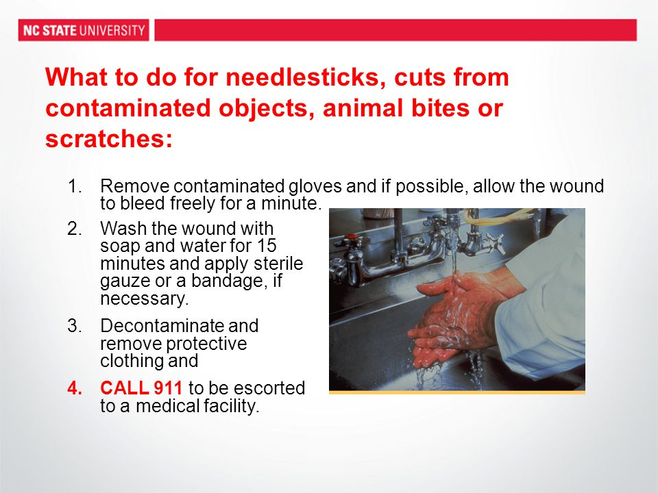 What to do for needlesticks, cuts from contaminated objects, animal bites or scratches: