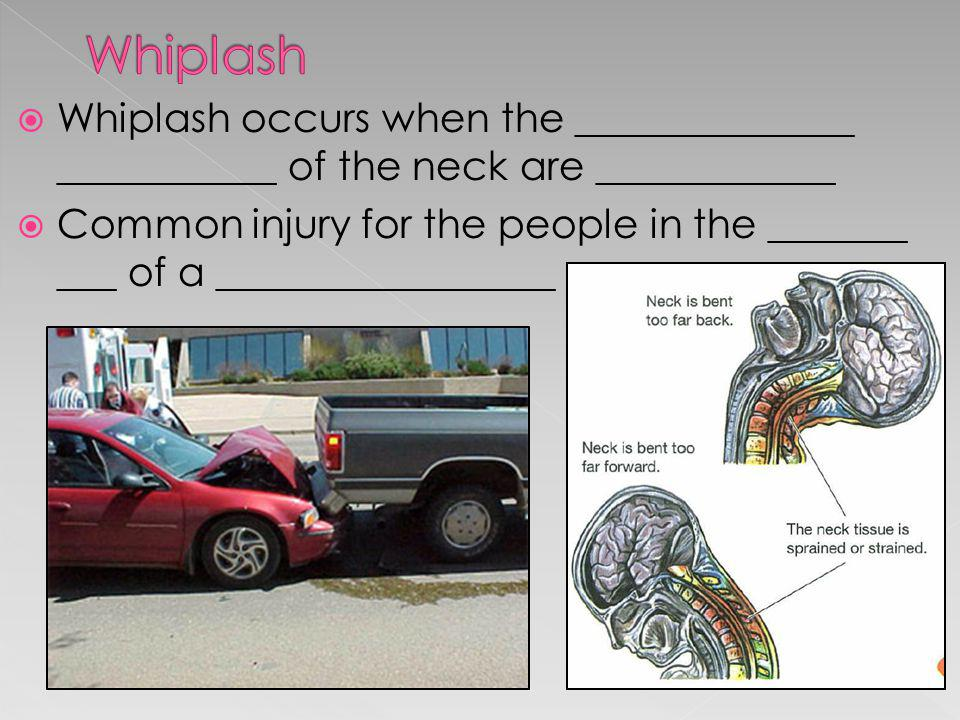 Whiplash Whiplash occurs when the ______________ ___________ of the neck are ____________.