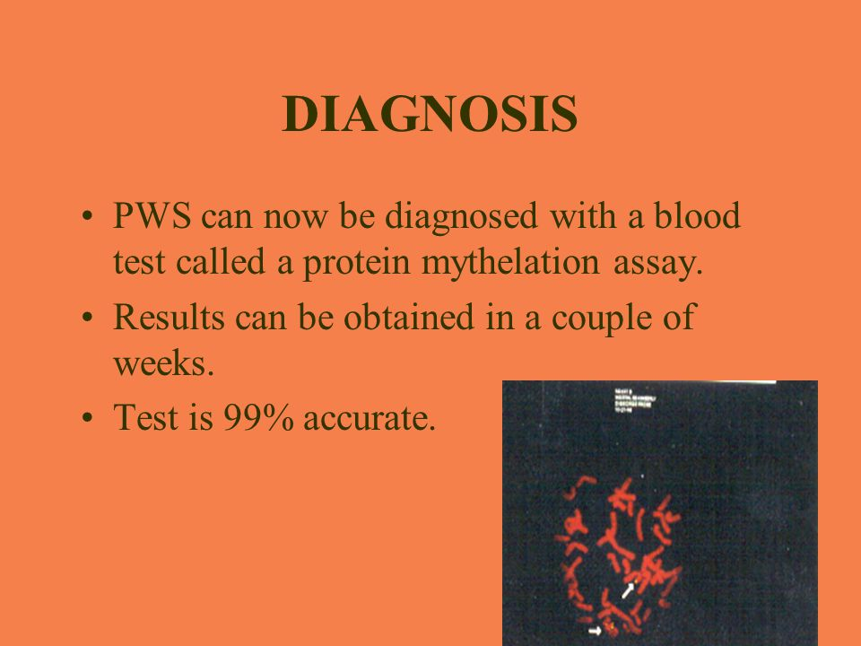DIAGNOSIS PWS can now be diagnosed with a blood test called a protein mythelation assay. Results can be obtained in a couple of weeks.