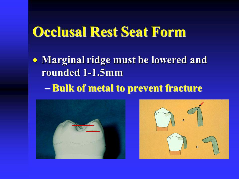 Occlusal Rest Seat Form