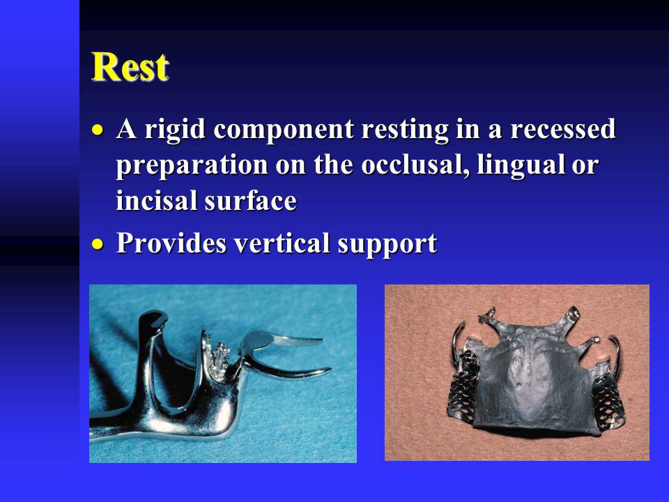 Rest A rigid component resting in a recessed preparation on the occlusal, lingual or incisal surface.