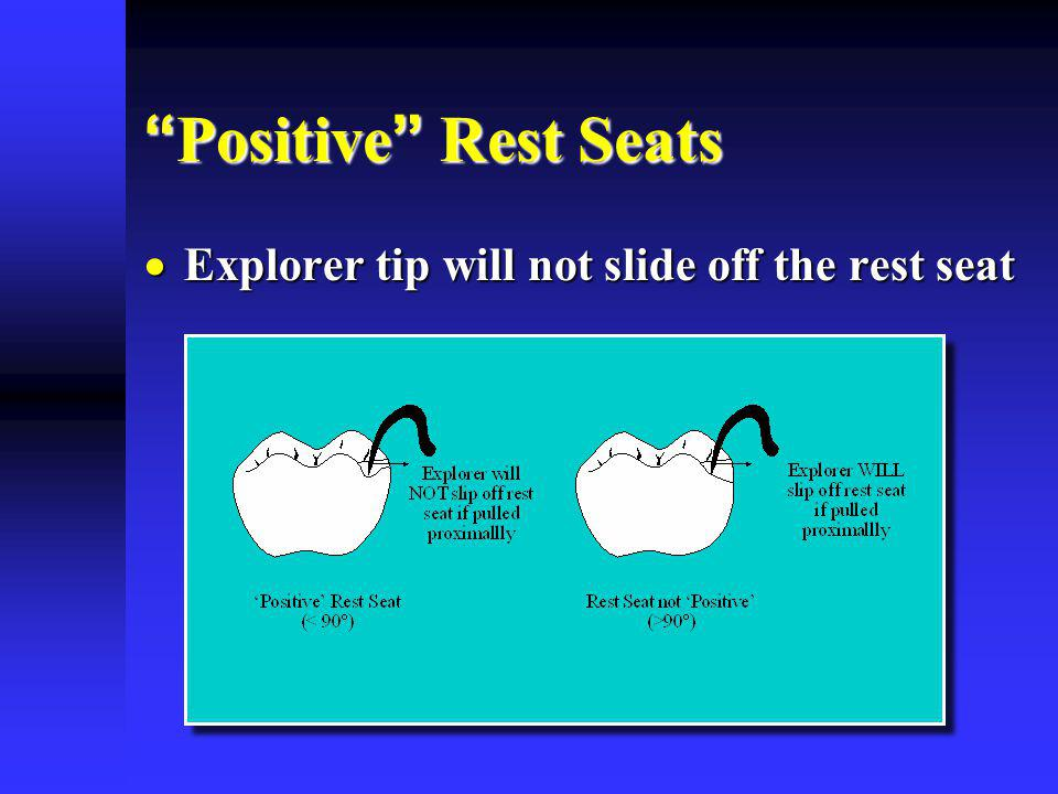 Positive Rest Seats Explorer tip will not slide off the rest seat