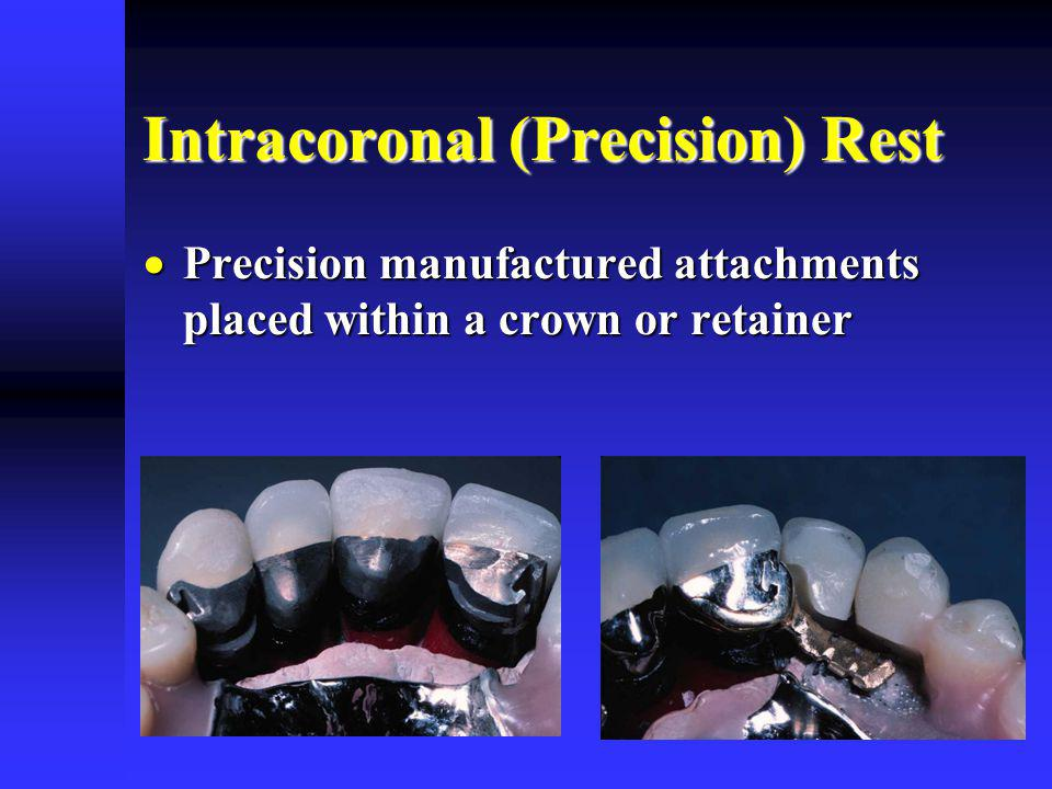 Intracoronal (Precision) Rest