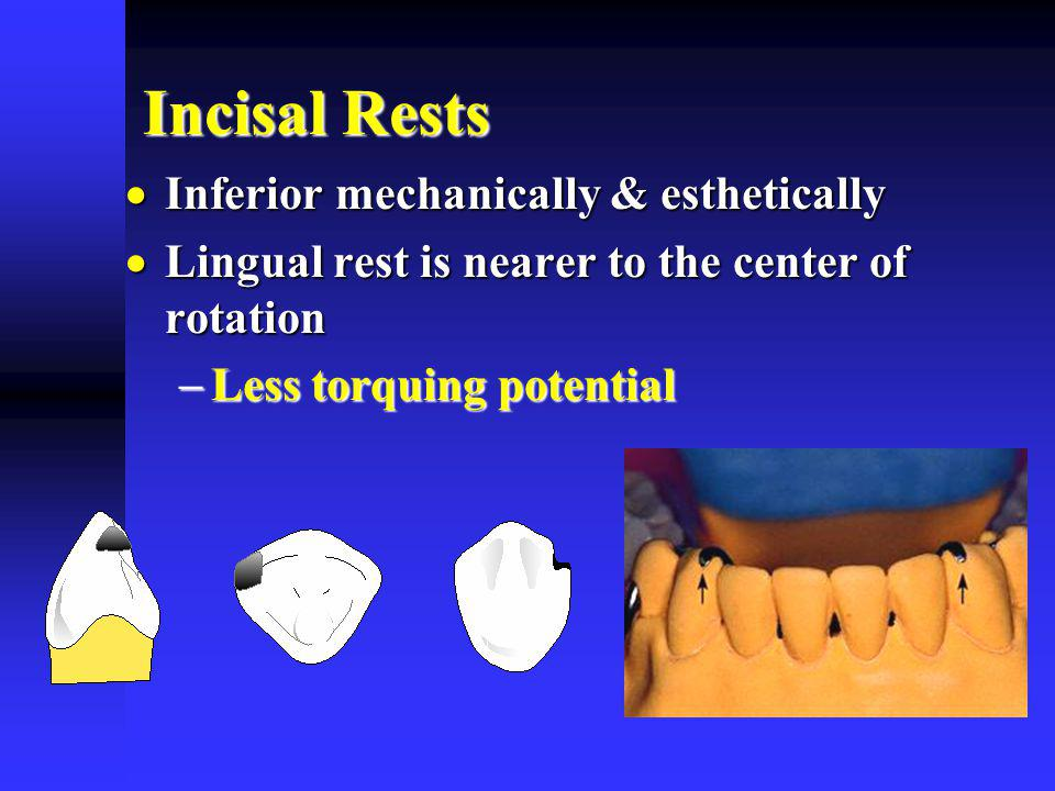 Incisal Rests Inferior mechanically & esthetically