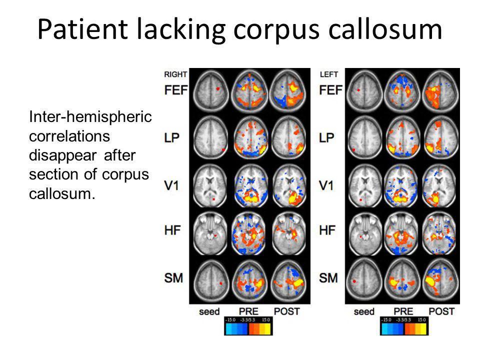 Patient lacking corpus callosum