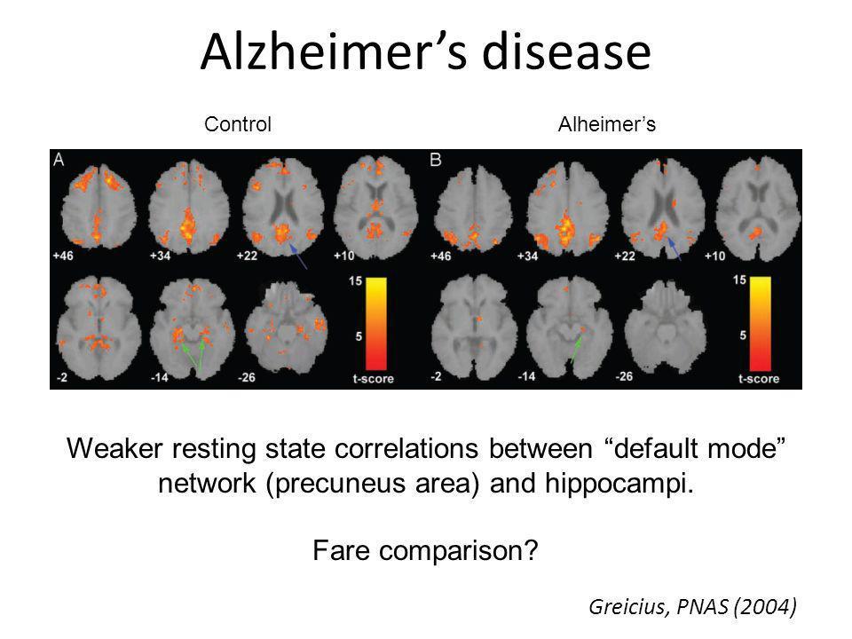 Alzheimer's disease Control. Alheimer's. Weaker resting state correlations between default mode network (precuneus area) and hippocampi.