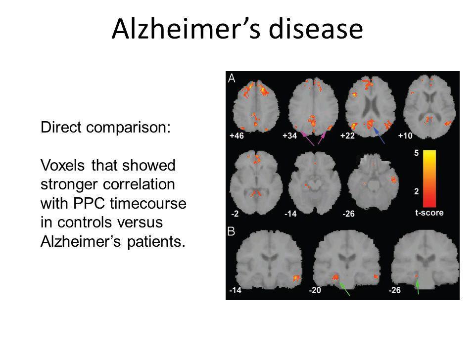 Alzheimer's disease Direct comparison:
