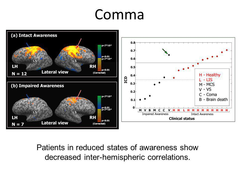 Comma Patients in reduced states of awareness show decreased inter-hemispheric correlations.