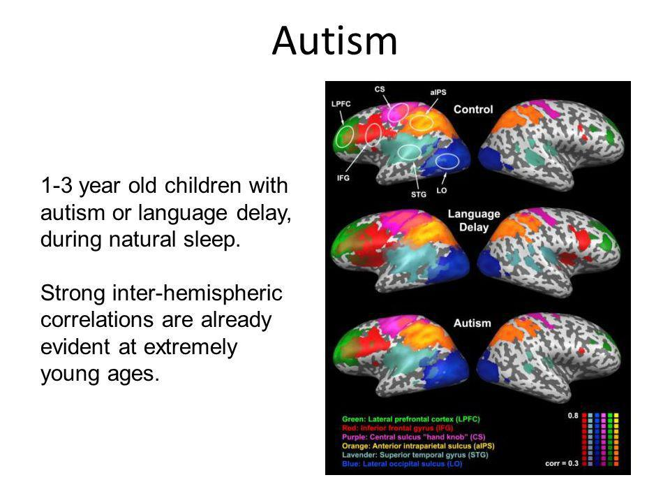 Autism 1-3 year old children with autism or language delay, during natural sleep.