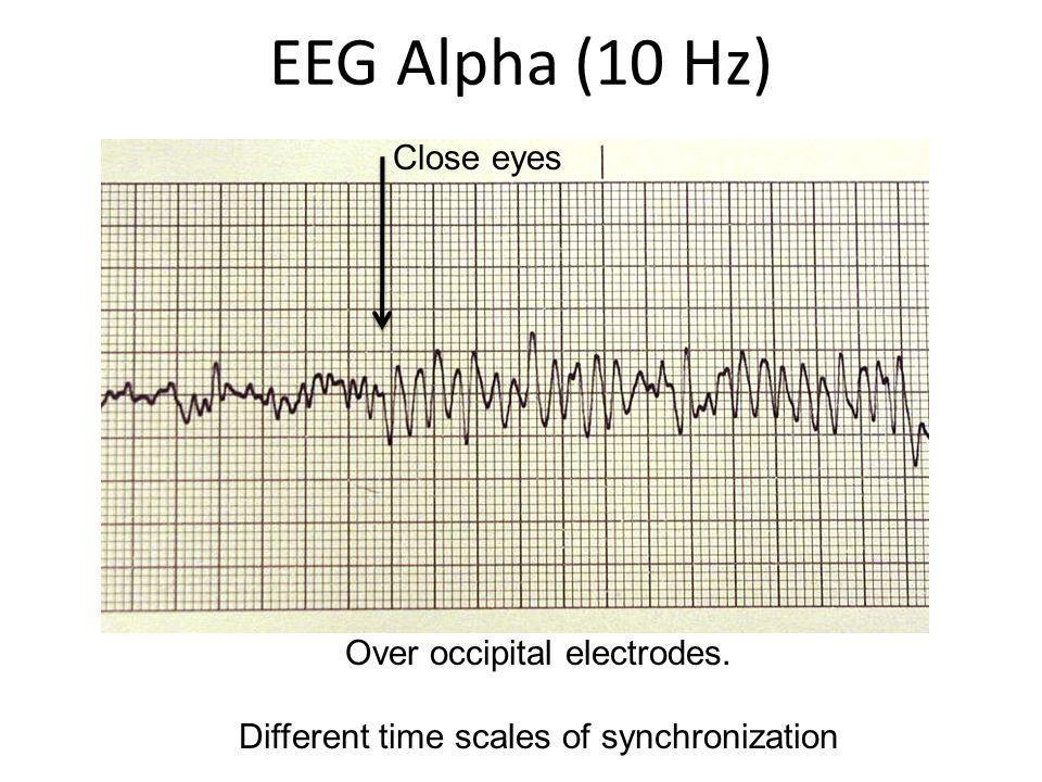 EEG Alpha (10 Hz) Close eyes Over occipital electrodes.