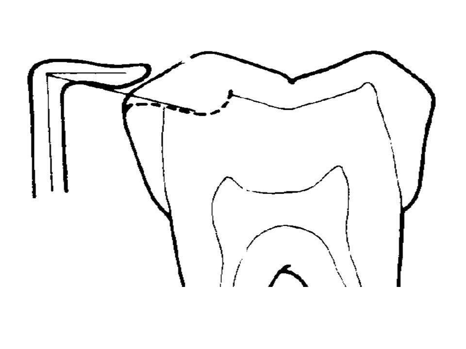 Transmitting Vertical Stress Along The Long Axis Of The Tooth