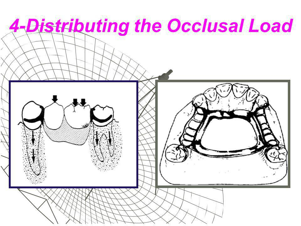 4-Distributing the Occlusal Load
