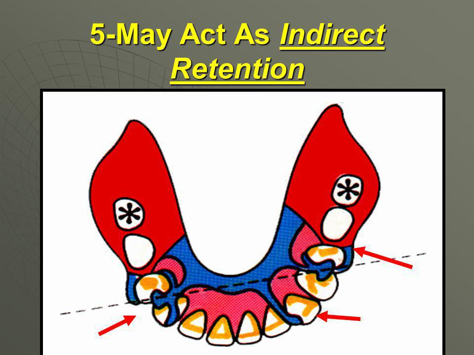 5-May Act As Indirect Retention