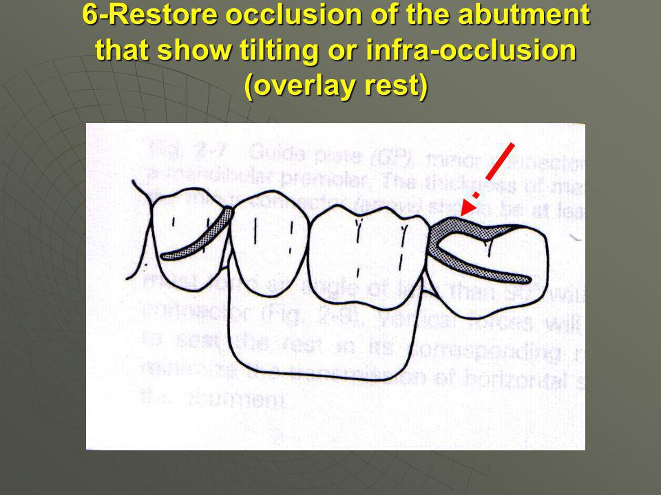 6-Restore occlusion of the abutment that show tilting or infra-occlusion (overlay rest)