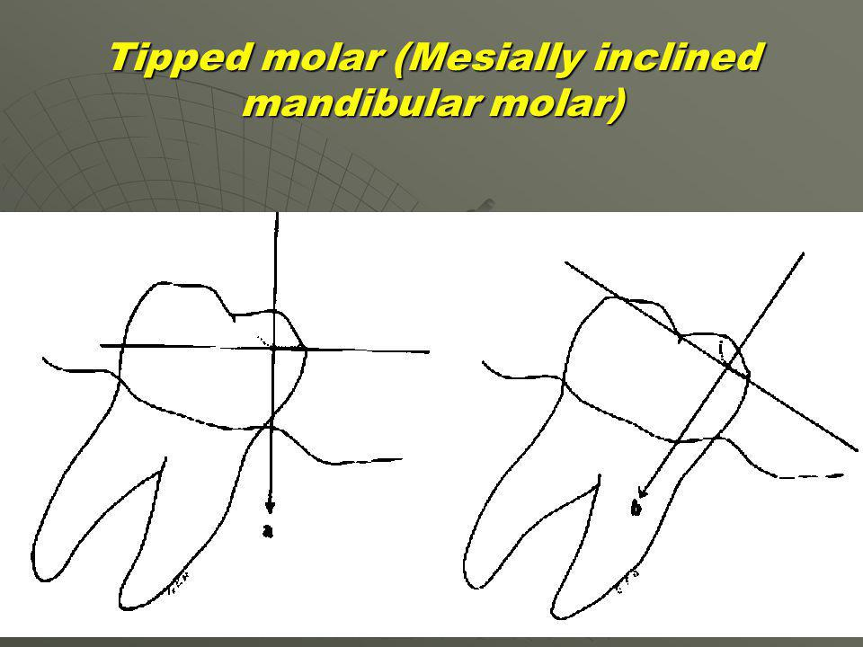 Tipped molar (Mesially inclined mandibular molar)