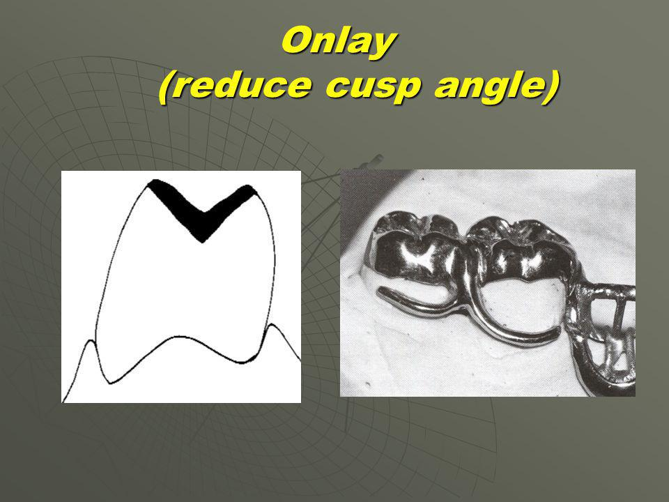 Onlay (reduce cusp angle)