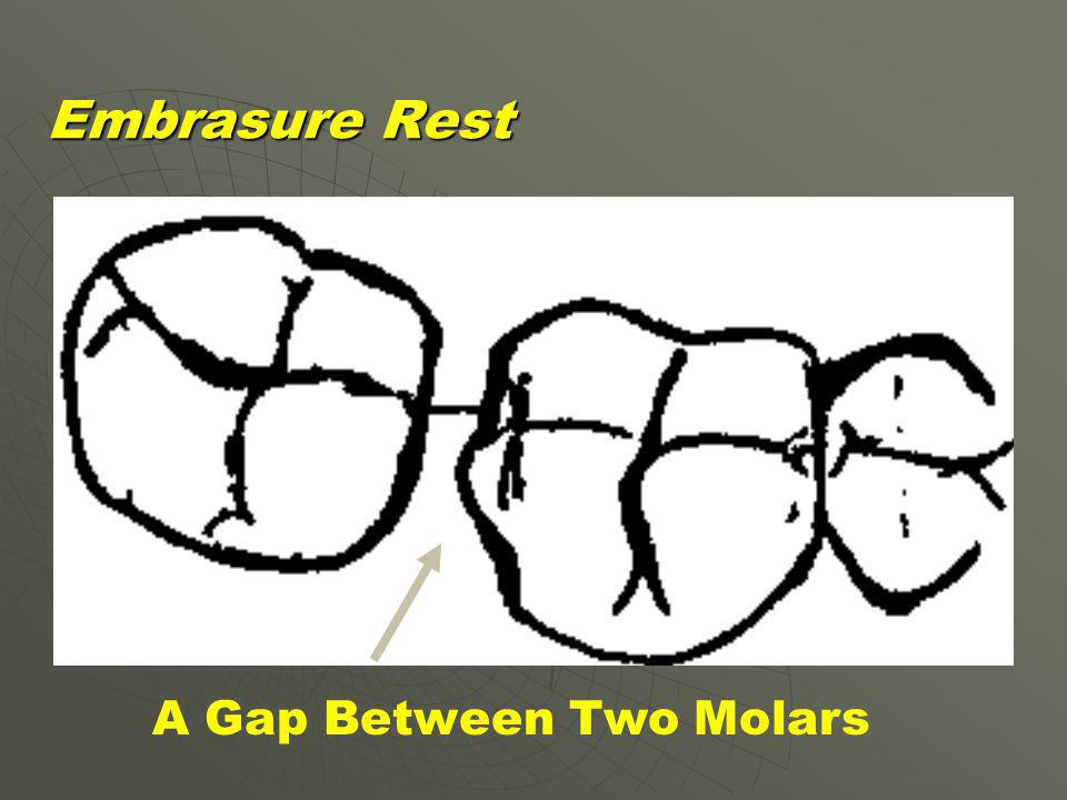 A Gap Between Two Molars