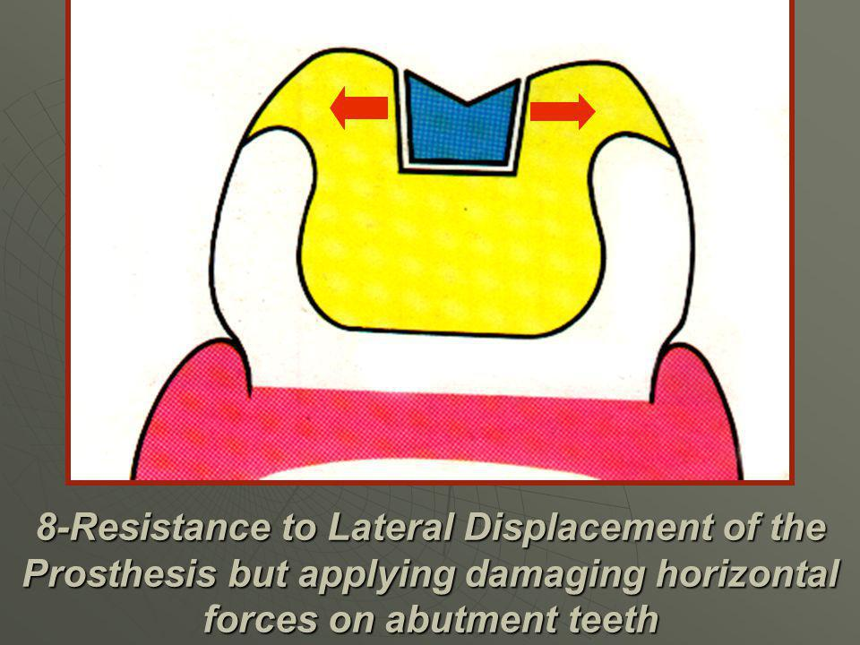 8-Resistance to Lateral Displacement of the Prosthesis but applying damaging horizontal forces on abutment teeth