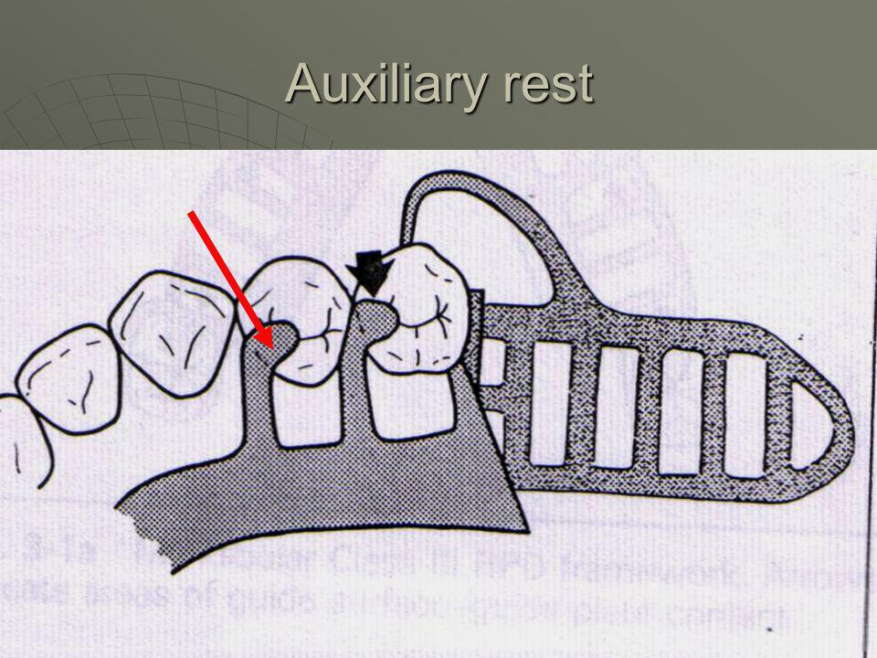 Auxiliary rest