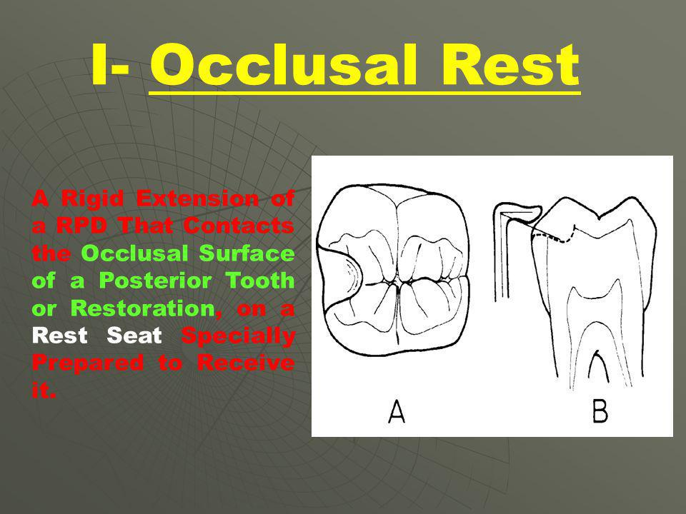 I- Occlusal Rest