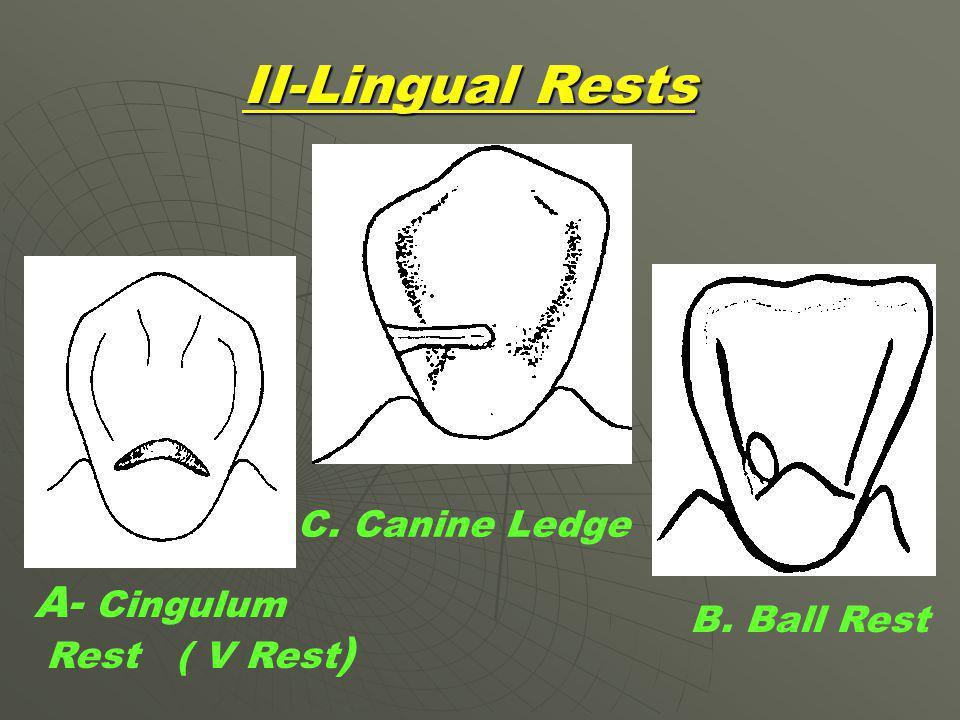 II-Lingual Rests A- Cingulum C. Canine Ledge B. Ball Rest