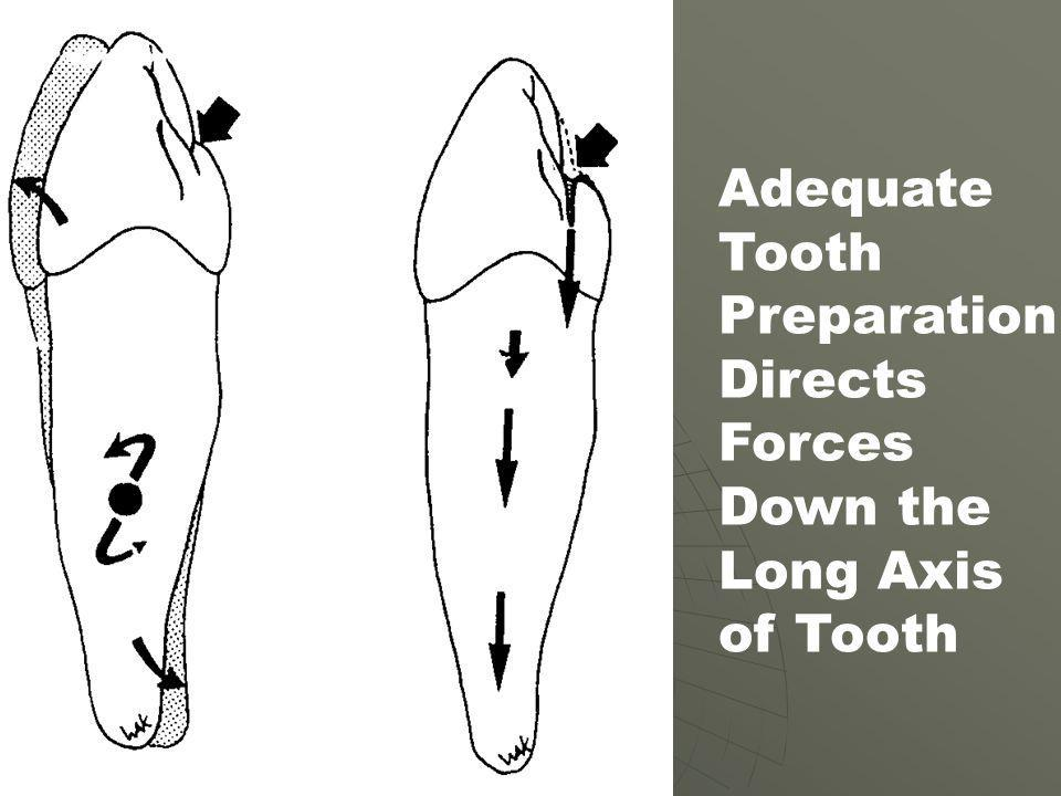 Adequate Tooth Preparation Directs Forces Down the Long Axis of Tooth