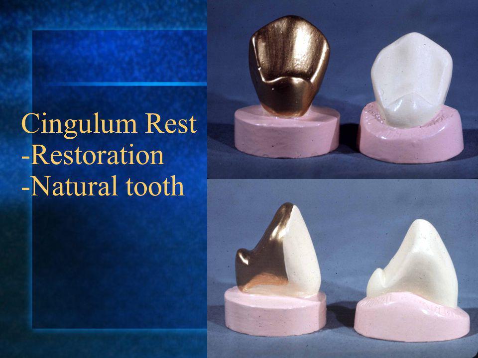 Cingulum Rest -Restoration -Natural tooth