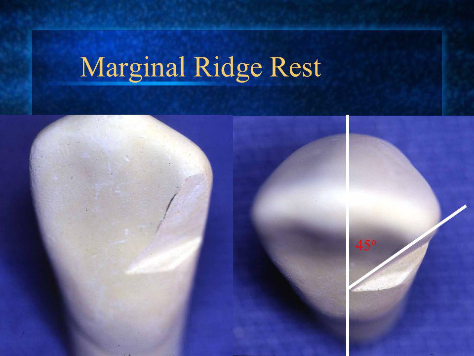 Marginal Ridge Rest 45o