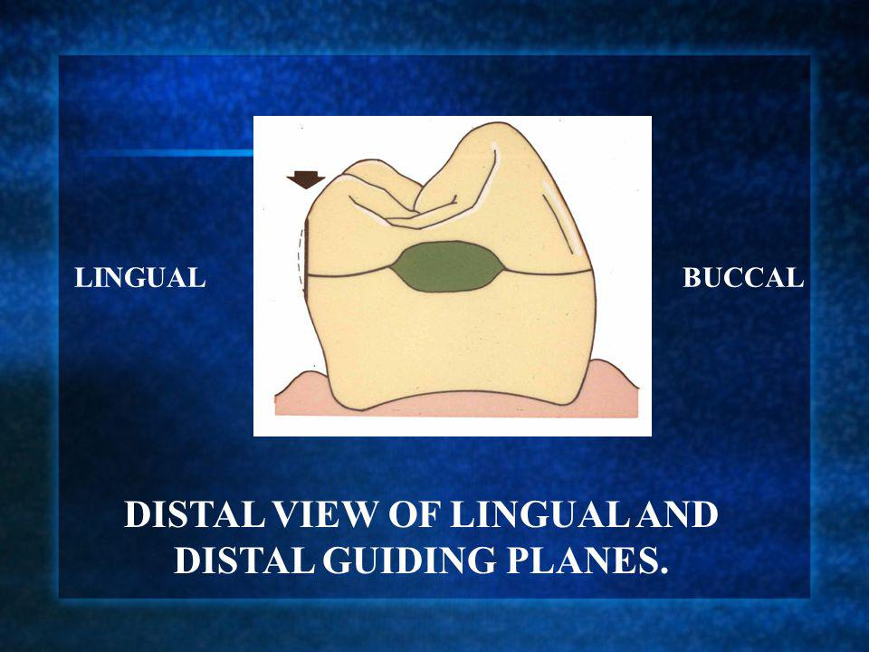 DISTAL VIEW OF LINGUAL AND