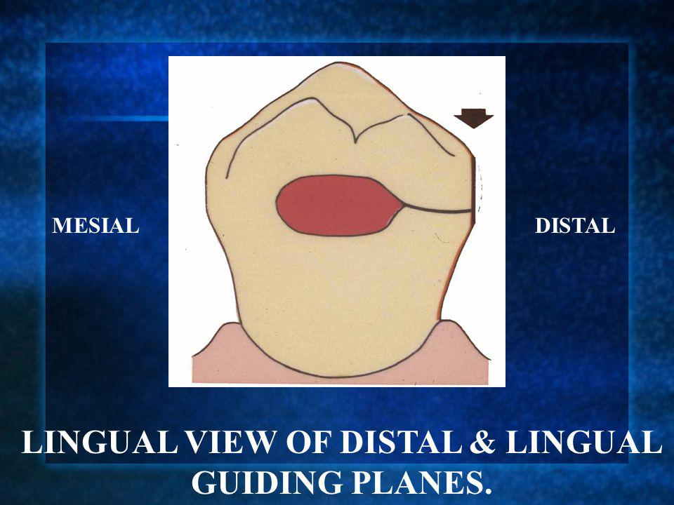 LINGUAL VIEW OF DISTAL & LINGUAL