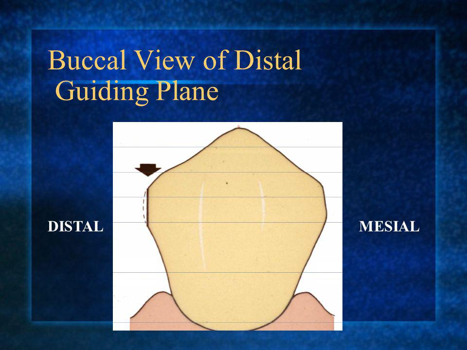 Buccal View of Distal Guiding Plane