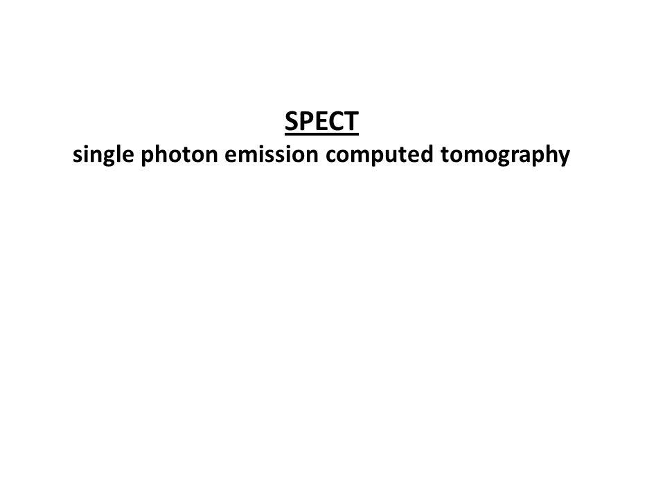 SPECT single photon emission computed tomography
