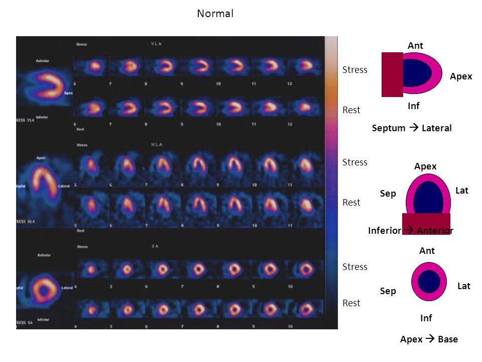 Normal Apex Septum  Lateral Stress Rest Inferior  Anterior Ant Lat