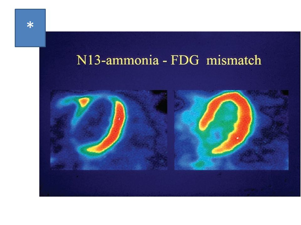 * PET with 13N-ammonia and 18F-FDG to assess