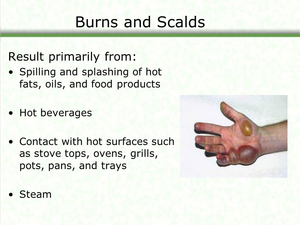Burns and Scalds Result primarily from: