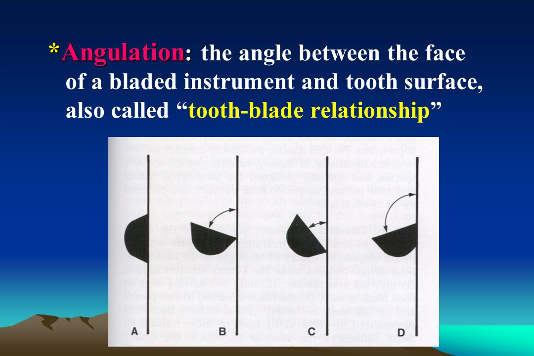 *Angulation: the angle between the face of a bladed instrument and tooth surface, also called tooth-blade relationship
