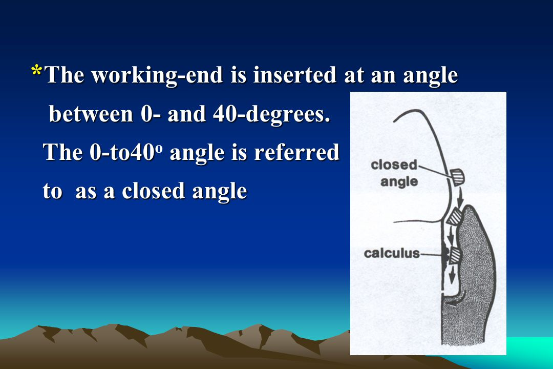 *The working-end is inserted at an angle
