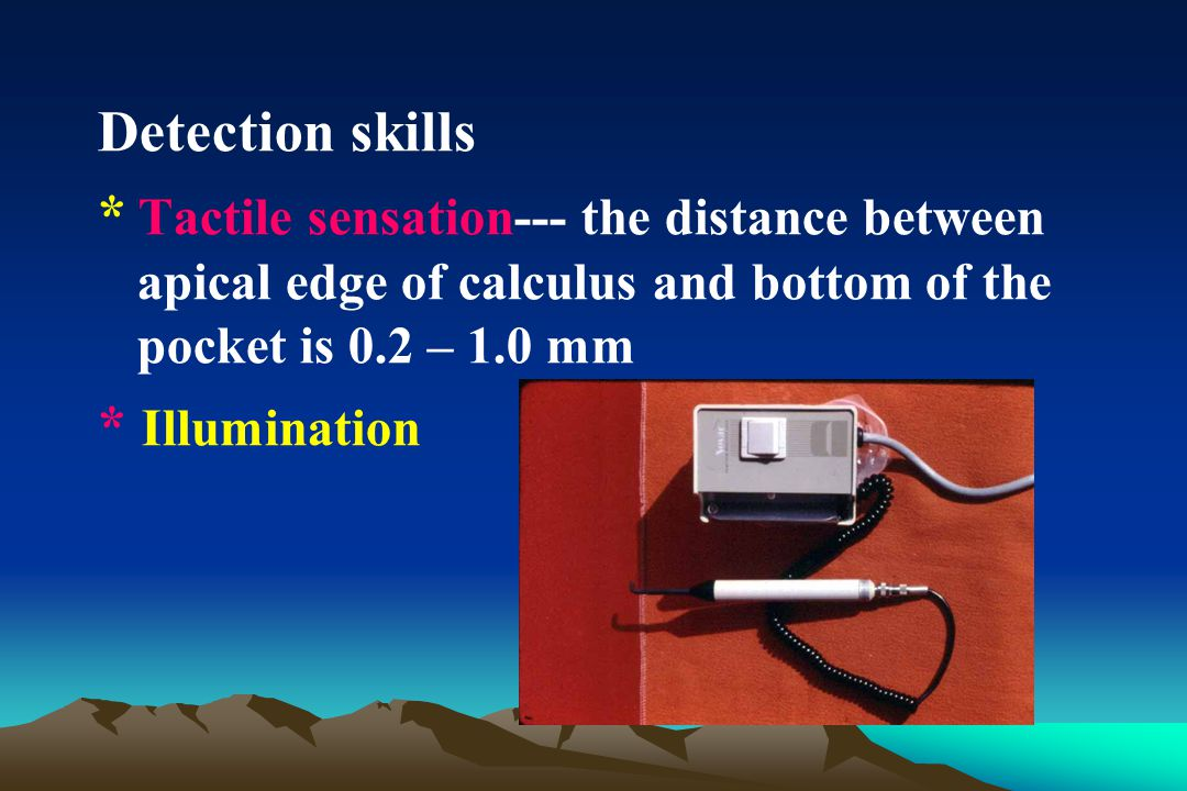 Detection skills * Tactile sensation--- the distance between apical edge of calculus and bottom of the pocket is 0.2 – 1.0 mm.