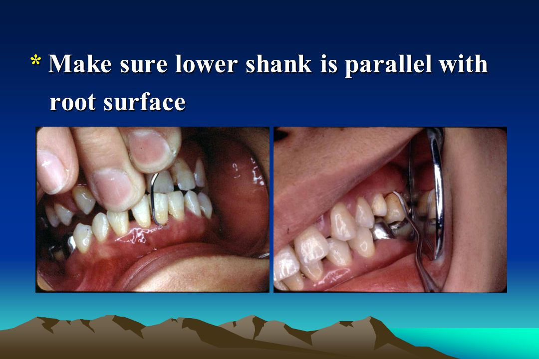 * Make sure lower shank is parallel with