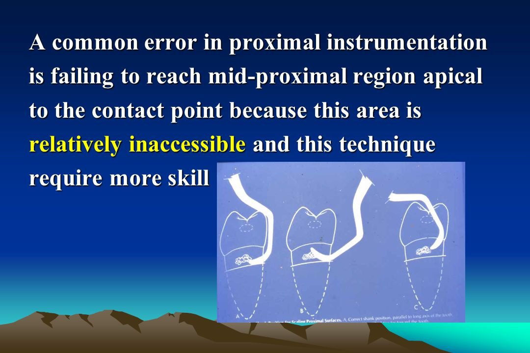 A common error in proximal instrumentation