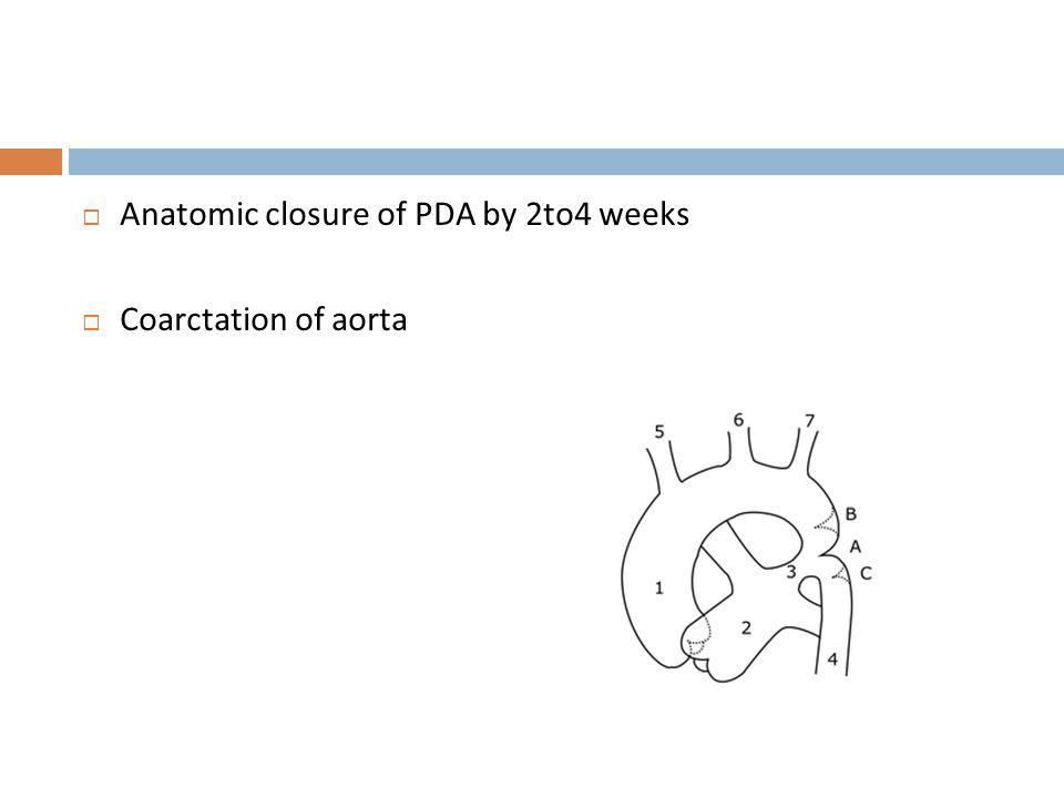 Anatomic closure of PDA by 2to4 weeks