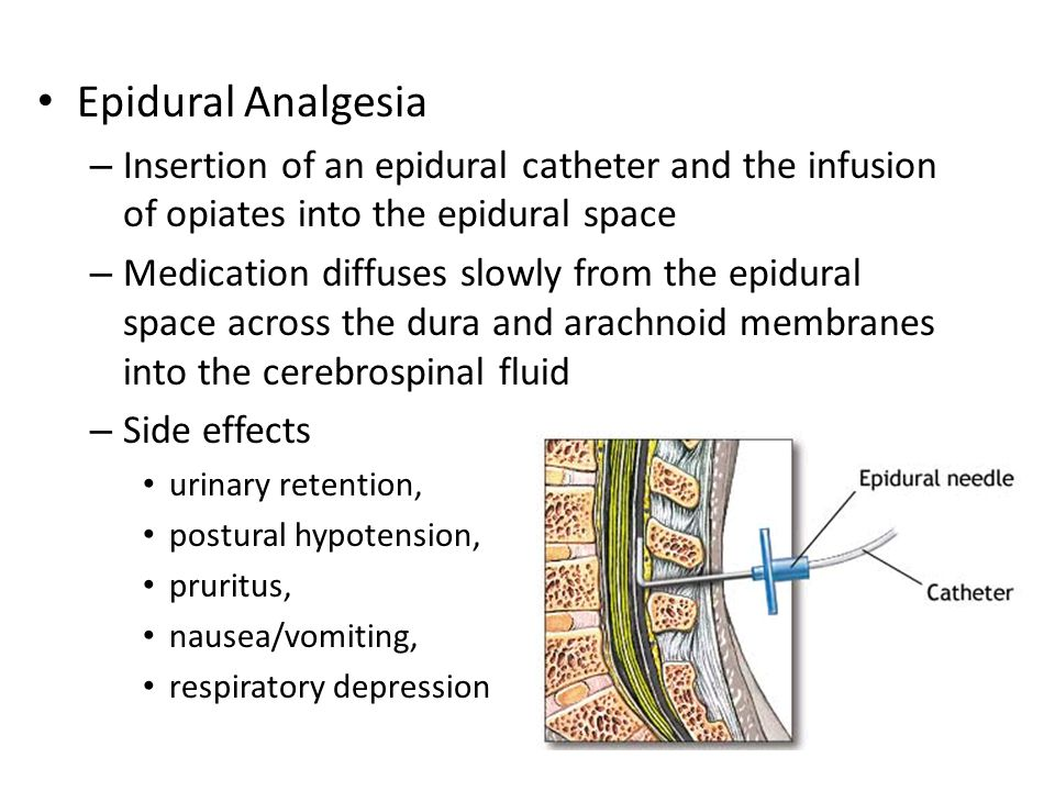 Epidural Analgesia Insertion of an epidural catheter and the infusion of opiates into the epidural space.