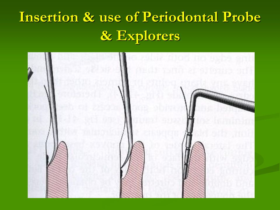 Insertion & use of Periodontal Probe & Explorers